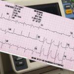 12-lead ECG interpretation